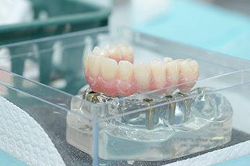 שתלים בשיניים - רופא שיניים עפולה