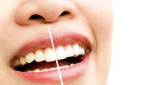 הבהרת שיניים ביתית