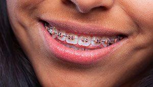 יישור שיניים - רופא שיניים בעפולה