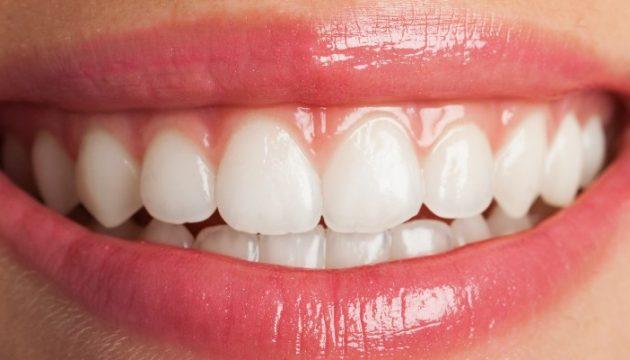 מחיר השתלות שיניים