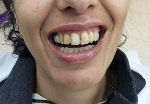 שיניים צהובת מאוד