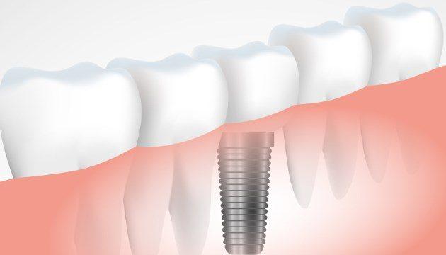 מושגים בהשתלות שיניים