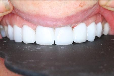 ציפוי חרסינה להעלמת שיניים צהובות