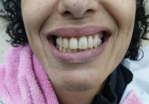 שיניים כבר לא צהובות