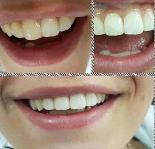 הלבנת שיניים צהובות