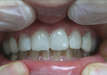 לפני ציפוי שיניים חרסינה סופי
