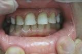 לאחר ציפוי חרסינה לשיניים