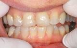 לפני ציפוי שיניים למינייט