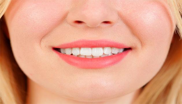 הלבנה לשיניים