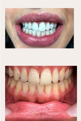 הלבנה לשיניים המלצות של מטופלת