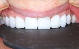הלבנה לשיניים באמצעות ציפוי חרסינה