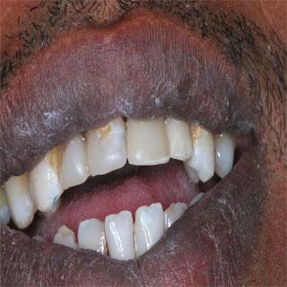 תוצאות טיפול שיניים עפולה