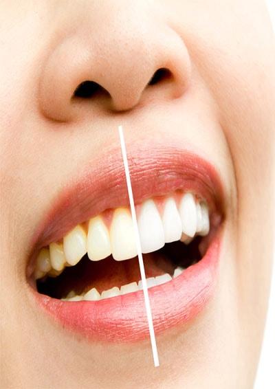 הלבנת שיניים - רופא שיניים בעפולה