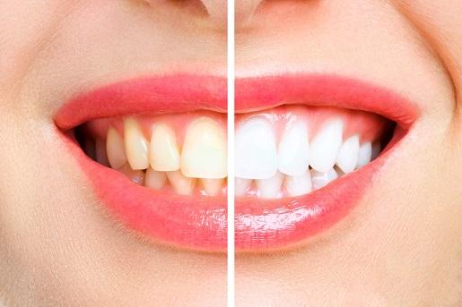 שיניים צהובות שיניים לבנות