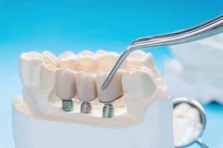 מידות לכתרים בשיניים