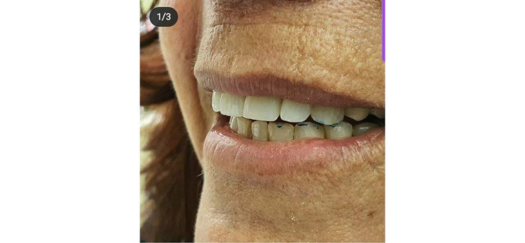 ציפוי לשיניים מחרסינה