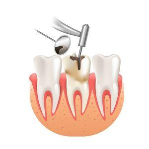 כיצד נוצר חור בשן