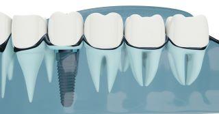השתלת שיניים שלא תכנס לסינוס